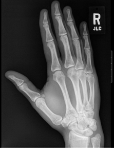 BC Injury Law Right Hand X Ray Image