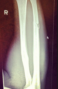 Ryan Ford Forearm Fracture Xray