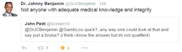 Doctor Benhamin Tweet Re Aldo Fracture