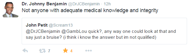 Doctor Benhamin Tweet Re Aldo Fracture