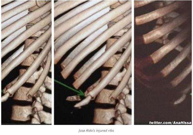 Jose Aldo Rib Fracture Images