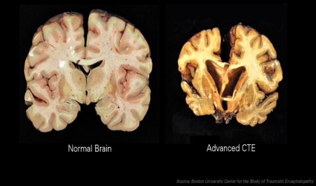 CTE Brain Image.PNG
